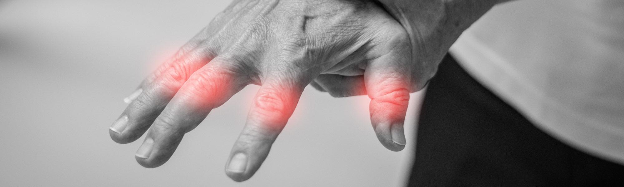 Artrosi alla mano: <br/>cause, sintomi, trattamenti
